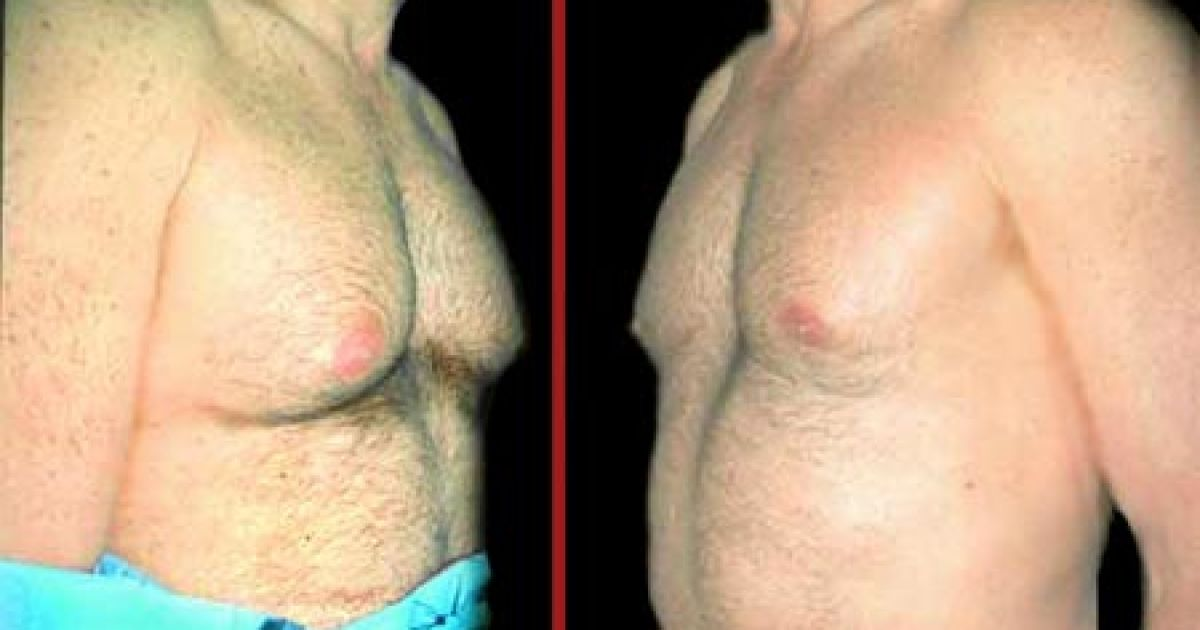 Фото растущей груди