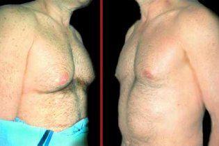 У мужчин XXI века начала расти грудь