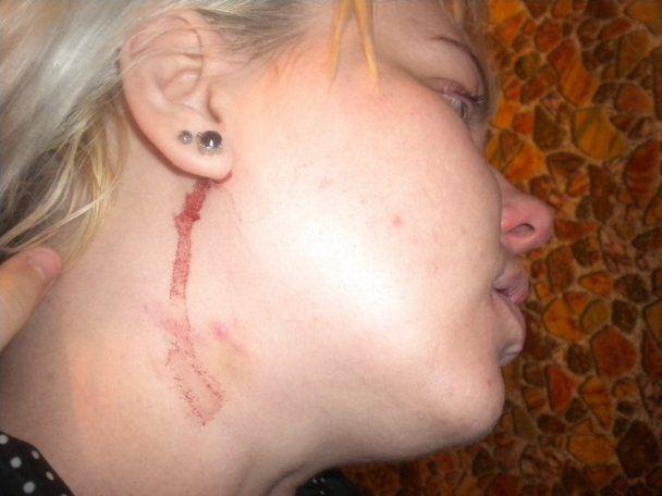 У Білорусі міліція жорстоко побила журналістку