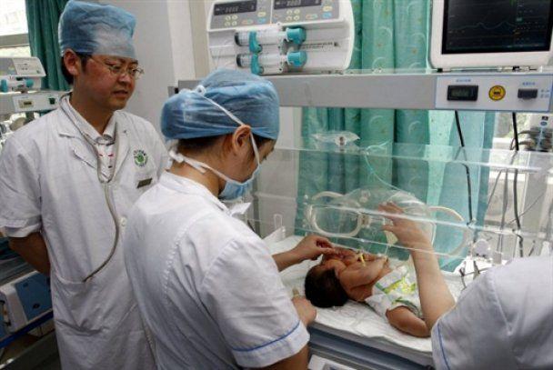 В Китае родилась девочка с двумя головами