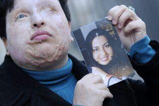 В Ірані випалять кислотою око чоловікові, який осліпив жінку
