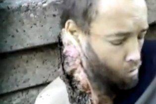 Врачи сняли жуткое видео: бомж жил с личинками в голове