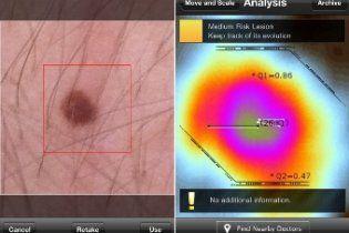 Додаток для iPhone стежитиме за родимками на тілі