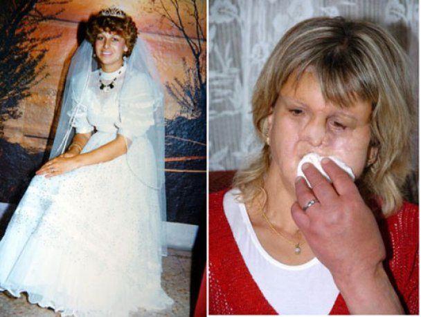 У російської туристки, яка отруїлась алкоголем у Туреччині, хочуть забрати обличчя