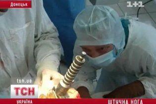 Донецкие хирурги поставили пациента на ноги, сделав ему бедро из титана