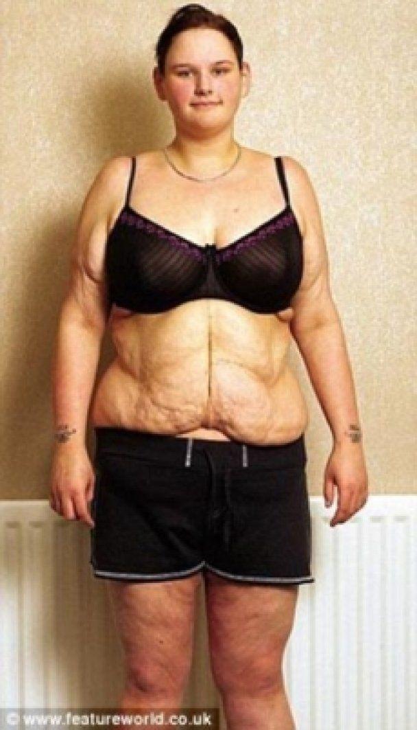 Самая толстая британка умирает от анорексии