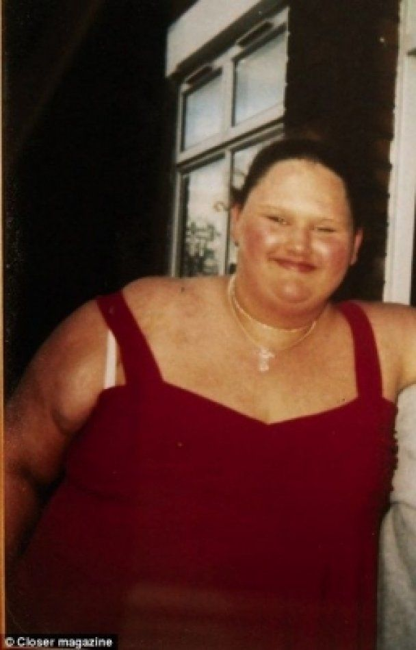 Колишня найтовстіша британка помирає від анорексії