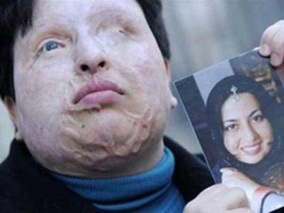 Облита кислотою жінка Амені Бахрамі!