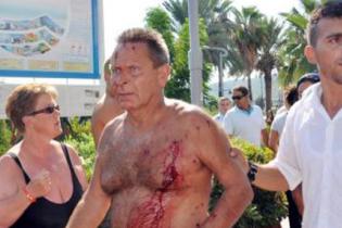 На пляжі турецького курорта Кемер стався вибух, постраждали туристи