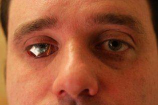 Канадієць вставив собі замість ока відеокамеру