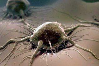 Захворюваність раком збільшилася на 20%
