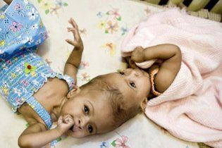 Британские хирурги успешно разделили сиамских близнецов
