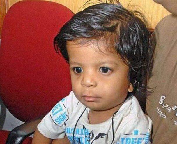 Новий рекорд книги Гіннеса: хлопчик народився з 34 пальцями