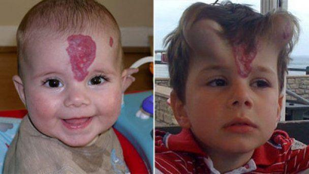 П'ятирічному хлопчику вживили диявольські роги
