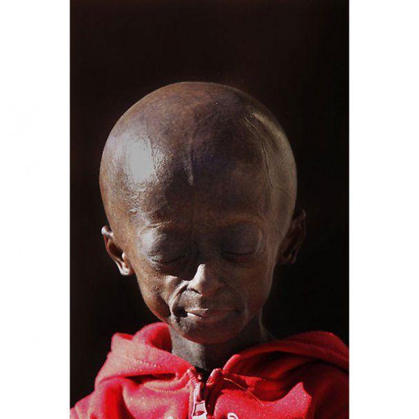 У Південній Африці мешкає 12-річна дівчинка-бабуся