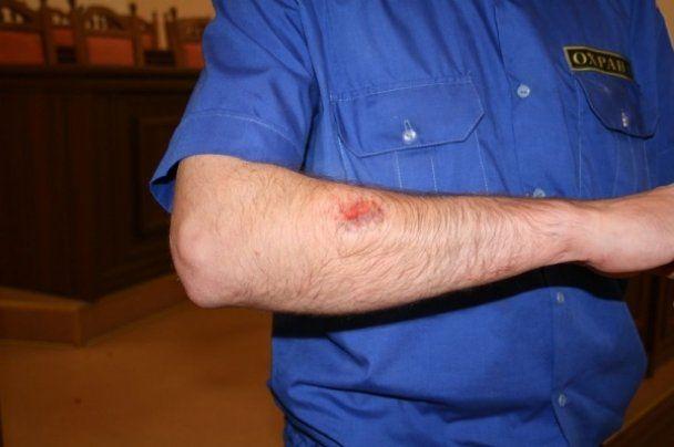 Охраннику Луганского горсовета откусили палец