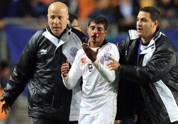 Футболісти побилися до крові через суперечливий гол_7