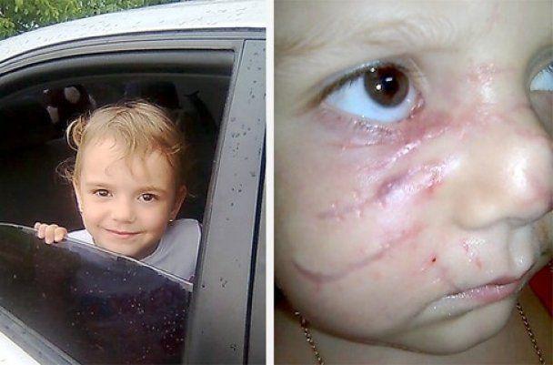 Хозяин питбуля, который разорвал лицо двум девушкам, заплатил 102 гривны штрафа