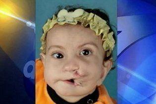 Унікальна операція: хірурги повернули посмішку дівчинці з двома ротами