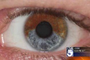 Змінити колір очей на голубий можна буде за 5 тисяч доларів