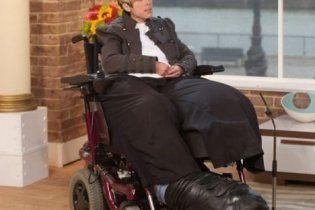 Из-за редкого заболевания у женщины отросла ампутированая нога