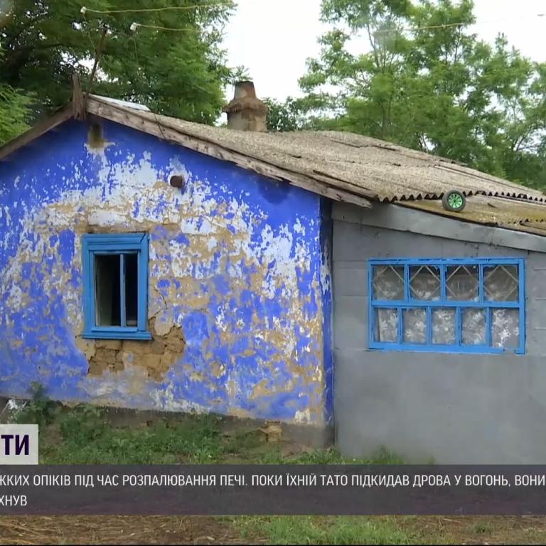 Були всередині вогняноїхмари: в Одеській області троє дітей випадково облились бензином та отримали тяжкі опіки