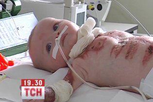 Допоможіть врятувати життя 8-місячній Софійці!