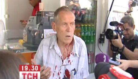 Літньому активісту розбили голову під кіоском з шаурмою
