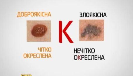 В Украине от меланомы умирают 95 человек из 100 больных