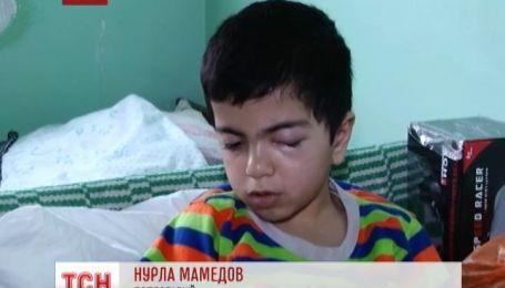 6-річний хлопчик постраждав від вибуху петарди в Криму