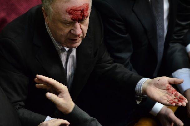 Регіонали переплутали однопартійця з опозиціонером та розбили йому голову - Бригинець