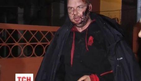 Живого, но изуродованного Дмитрия Булатова привезли в частную больницу