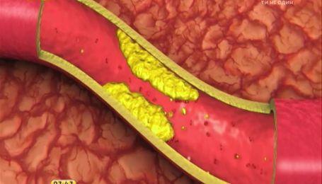 Щороку в Україні фіксують 50 тисяч випадків інфаркту міокарда