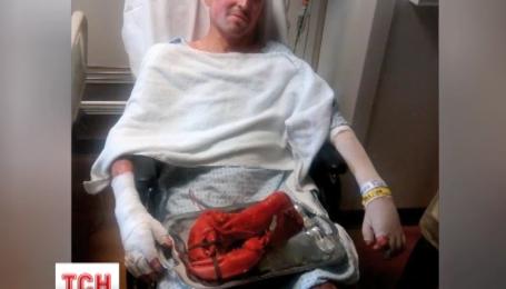 В Украину вернулся после реабилитации раненый артиллерист