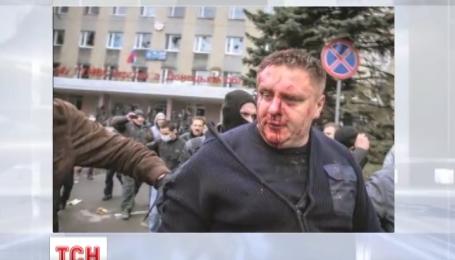 Милицию Харьковщины возглавил офицер, который чудом выжил после избиения сепаратистами