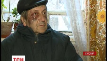 Грабителей, которые пытали пенсионеров, задержали в Житомире