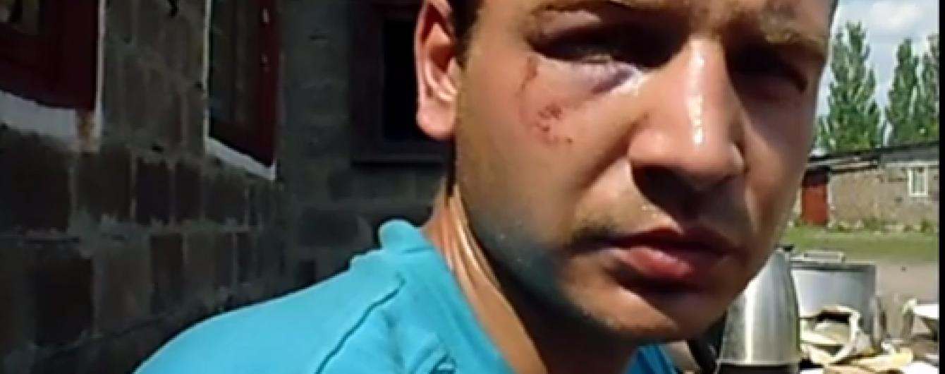 З полону звільнили бійця, якого бойовики змусили брехати про 200 загиблих у Мар'їнці