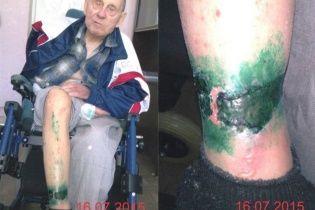 Скандал на Черниговщине: врачей хосписа обвиняют в истязании инвалида