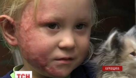На Харьковщине родители не показывали врачам обожженную трехлетнюю дочь