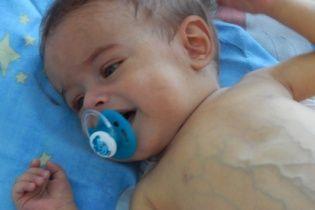 Допоможіть врятувати життя крихітному Романчику
