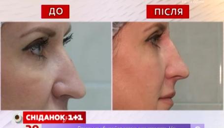 Как без хирургического вмешательства изменить форму носа