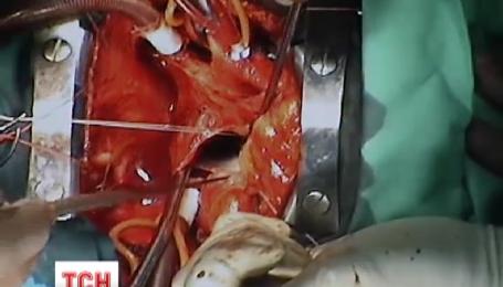 Українські хірурги вчаться у європейських оперувати серце, не розтинаючи грудей