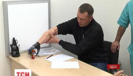 В Одессе бойцу, которому оторвало руку в зоне АТО, установили бионический протез руки