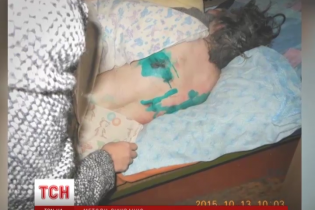 У психлікарнях на Чернігівщині пацієнти спали у власних випорожненнях і працювали до 11 годин на добу