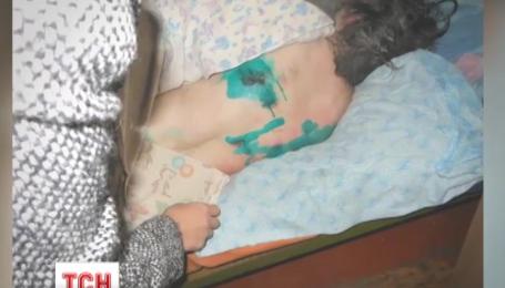 На Чернігівщині персоналові кількох психлікарень закидають знущання над пацієнтами