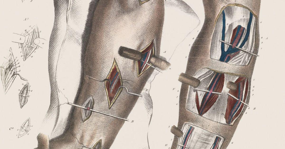 Хірургія 19-го століття.