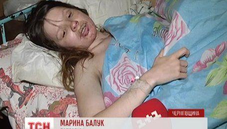 На Чернігівщині чоловік облив бензином дружину й підпалив