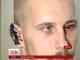 Активісту відкусили вухо після сесії міськради в Херсоні