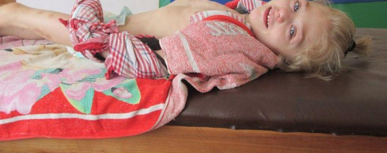 8-річна Вікторія з Донбасу потребує допомоги небайдужих