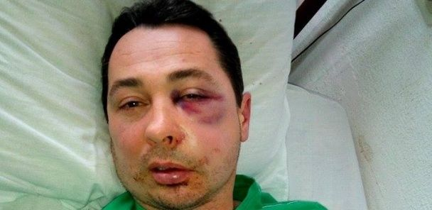 На Херсонщині невідомі до нестями побили депутата Хомінця